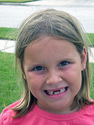 Rhyan no teeth